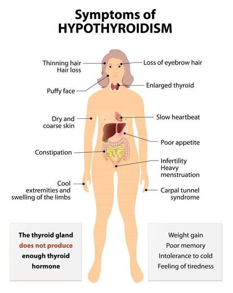 symptoms skin problems with hypothyroidism picture 5
