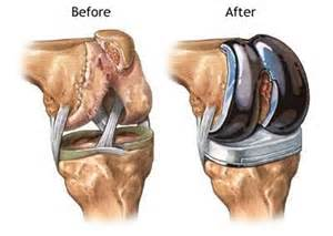 joint mobilizations after total knee arthroplasty picture 10
