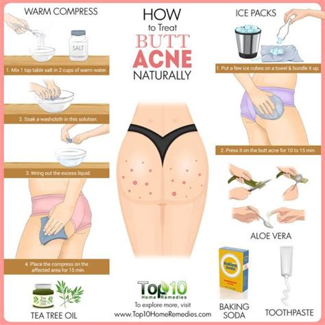 acne remedies picture 1