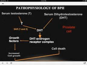 hypertrophy of bladder picture 6
