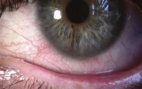 acne symptoms picture 2