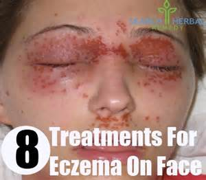 allergic reaction to herbal cleanse picture 9