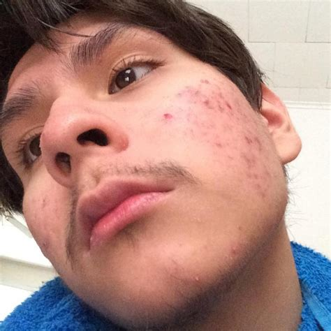 acne marks wont go away picture 7