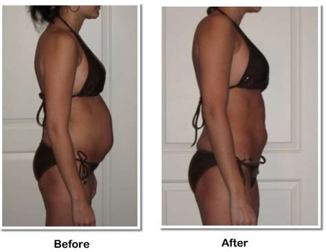 bloating during detox picture 5