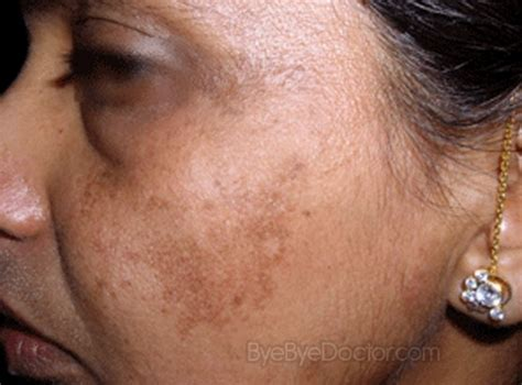 face skin rash picture 3