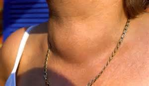 dangerous thyroid conditions picture 3