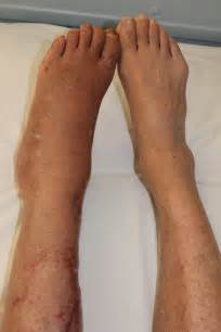 muscle in legs disease picture 11