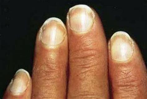fingernails show signs of liver failure picture 6