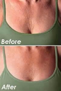 vicks on wrinkles picture 3