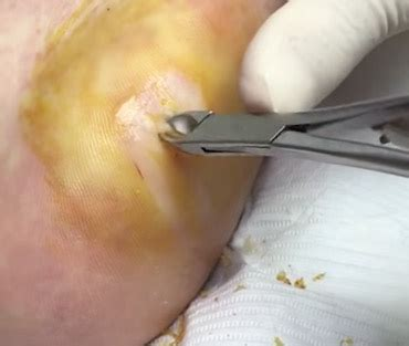 plantar wart surgery picture 2