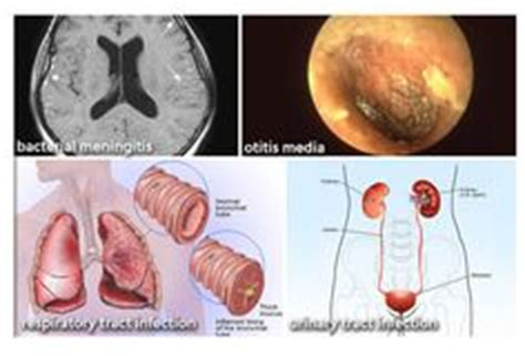 Acute bacterial ois media picture 7