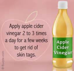 skin tags oregano removal picture 7