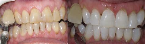 children yellow teeth whitening picture 2