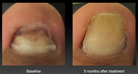 toenail treatment safety with lamisil for fungus picture 6
