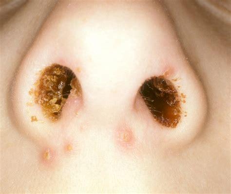 skin condition mrsa boils picture 6