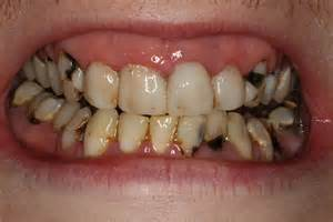 tooth decay picture 1