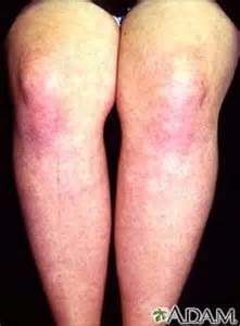 central nervous system strain skin rash picture 18