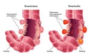what is le cerbvas disease picture 2