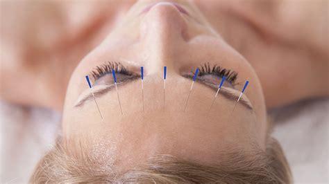 acupuncture hypothyroidism picture 7