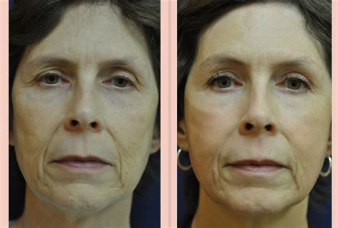 can a co2 total fx full face laser picture 8