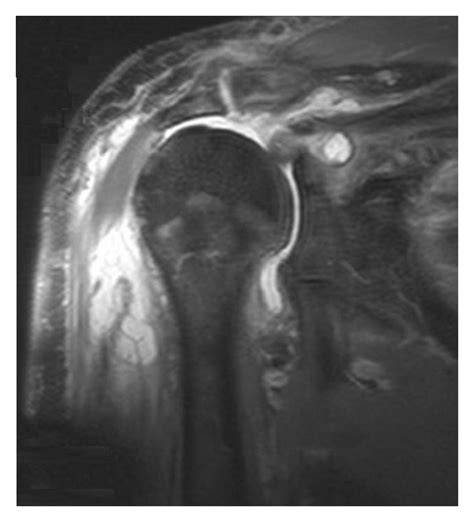 ac joint arthritis picture 7