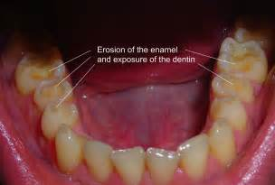 dental erosion & teeth whitening picture 1