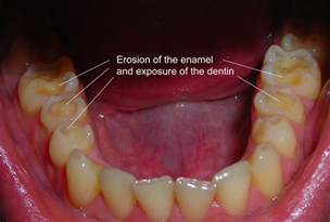 dental erosion & h whitening picture 3