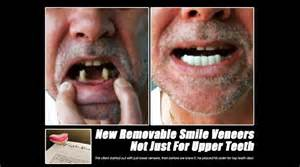 cheap snap on veneers for teeth picture 6