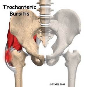 pelvic joint surgery picture 1