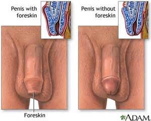 balanitis on an intact penis picture 5