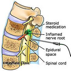 pain in epidural spot and cure picture 5