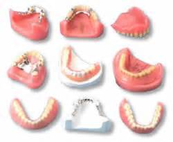 different types of false teeth picture 14