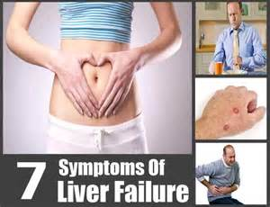 symptoms liver failure picture 1