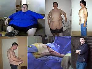 over weight loss flab picture 6