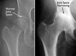 does seasilver help arthritis in the joints picture 6