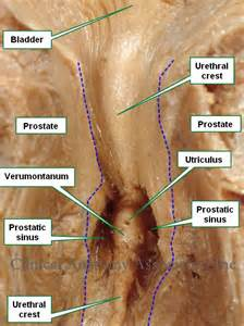 Prostate ductal structure picture 1