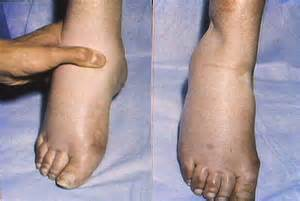 No appee weight loss swollen foot are symptoms picture 6