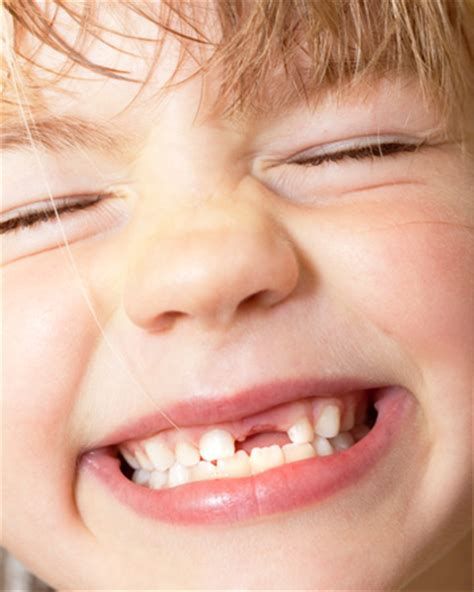 child's health loose teeth picture 13