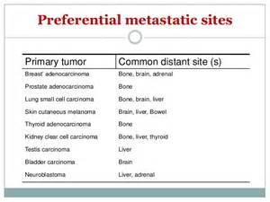 malignant liver tumors picture 9