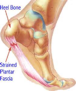 muscle fasciae cure for picture 6