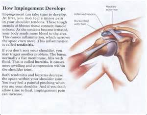 joint impingement syndrome shoulder diagnosis treatment picture 3