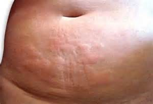 can mollus contagiosum cause hives picture 2