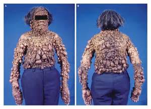 nf skin disorder picture 1