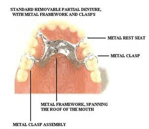 single tooth stay plate picture 9