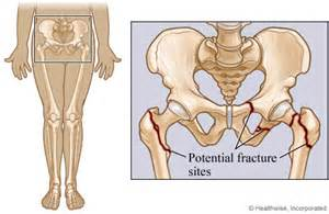 hip joint medical information picture 10