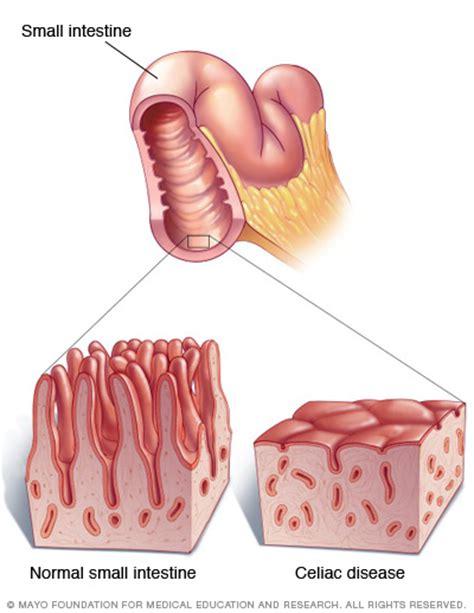 gall bladder & celiac desease picture 6