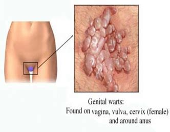 having a relationship with gential warts picture 3