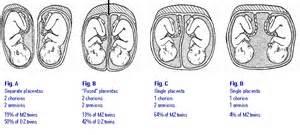 placenta blood flow problems picture 3