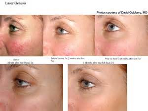 an skin treatments picture 5