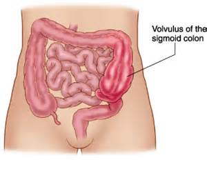 symptoms of intestinal obstruction picture 11